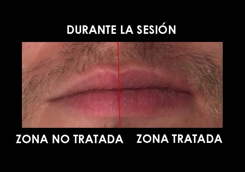 labios antes y después Borne 15